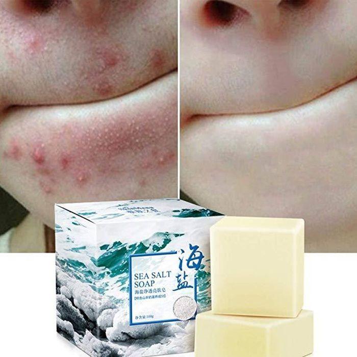 Savon au sel de mer naturel au lait de chèvre, ROMANTIC BEAR cicatrices de points noirs et d'acné savon anti-cellulite, visage pour