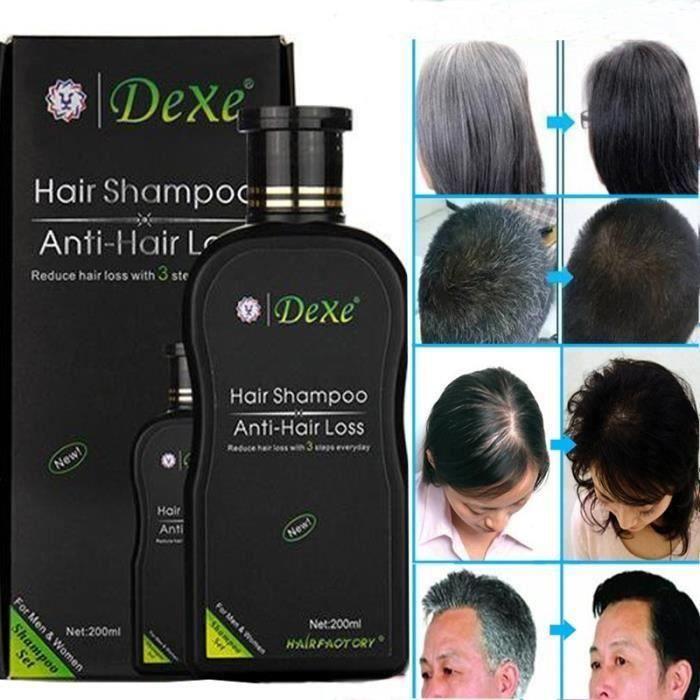 Hair Care Dexe Hair Shampoo Set Anti-hair Loss Chinese Herbal Hair Growth Product Prevent Hair Treatment for Men &amp Wome Mo28248