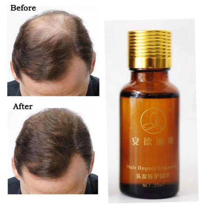 20ml Pousse Des Cheveux Traitement Anti Perte L Huile Essentielle