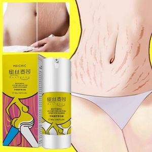 SOIN VERGETURES L'élimination des cicatrices d'acné vergetures crè