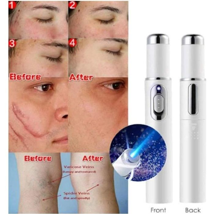 Stylo Laser De Traitement Élimination des cicatrices, Blue Light Therapy Varices Pen Portable Wrinkle Scar Acné Remover Device
