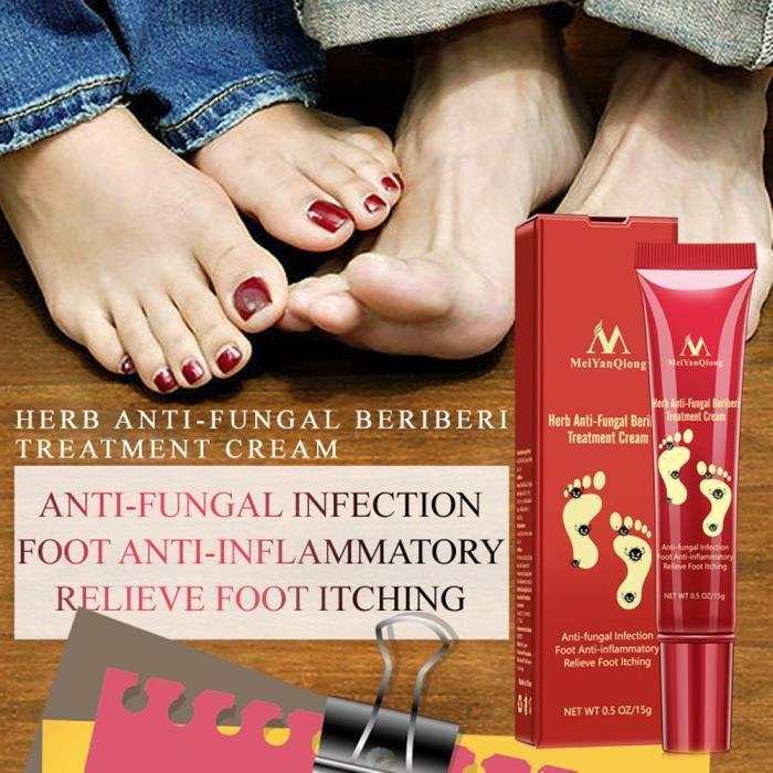 SOINDESPIEDS L'odeur des pieds élimine la pommade crème antifongique Tinea Pedis soins des pieds anti-démangeaisons