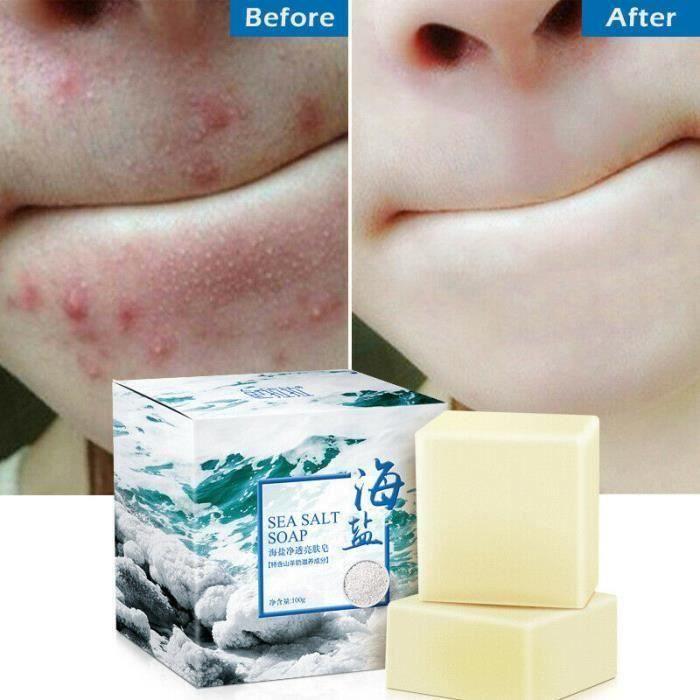 4pcs * 100g Savon au sel de mer naturel au lait de chèvre, éliminer l\'acné, la peau propre, rétrécit les pores, anti points noirs